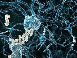 alzheimers-amyloid