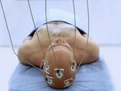 Электростимуляция головного мозга