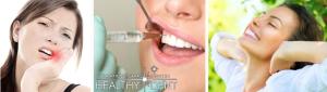 Удаление зубов HD