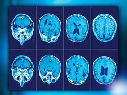 Вторично прогрессирующий рассеянный склероз