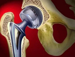 Способы фиксации эндопротезов